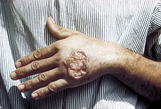 the real deal, leishmaniasis...courtesy of wikipedia