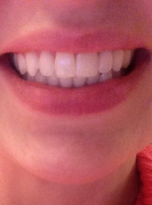 How weird that I am just now noticing my uneven lips when I smile? Here is the smile BEFORE...