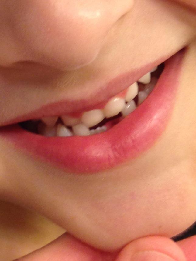 toothaa
